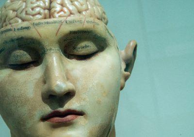 Sculpture médicale en plâtre représentant un crane ouvert et le cerveau.